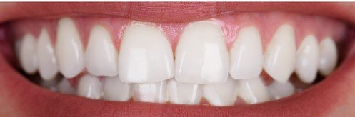 before-after teeth whitening