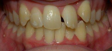 adult braces cheap brisbane | adult braces cost brisbane