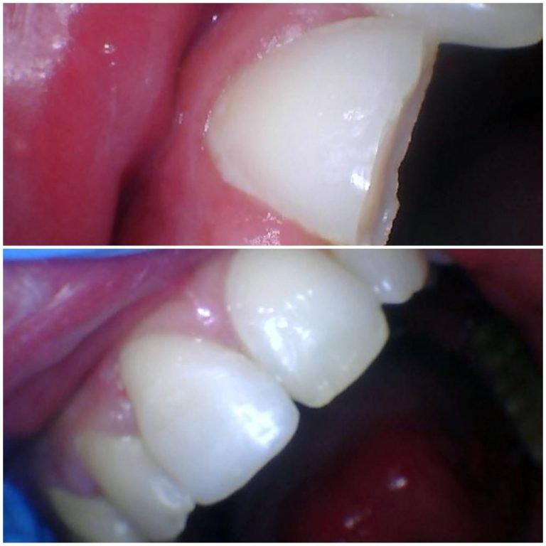 My Gentle Dentist before-after-teeth-whitening-1
