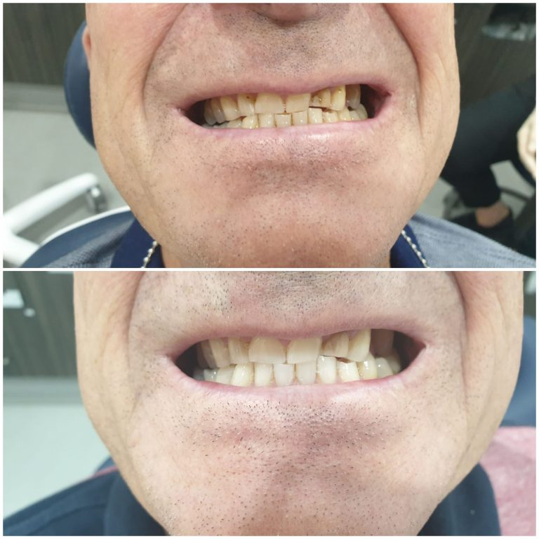 My Gentle Dentist before-after-teeth-whitening-2