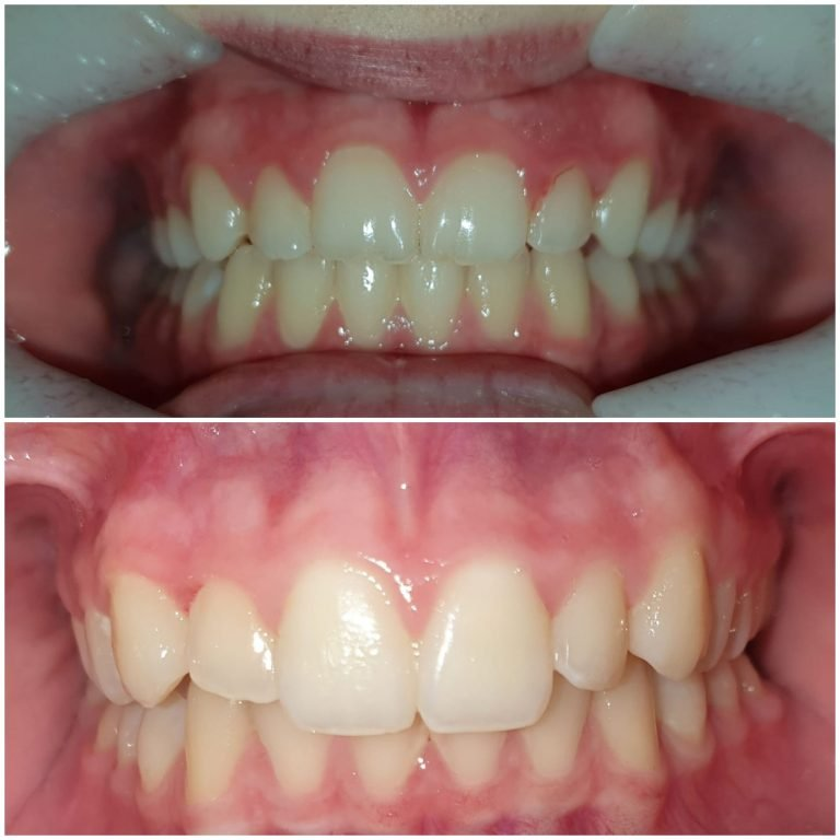 My Gentle Dentist before-after-teeth-whitening-3