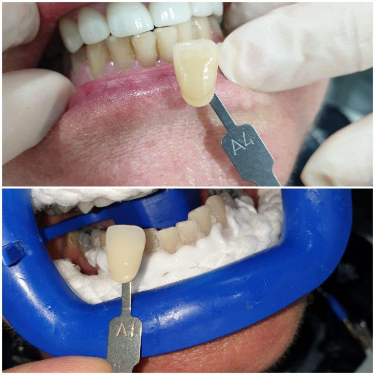 My Gentle Dentist before-after-teeth-whitening