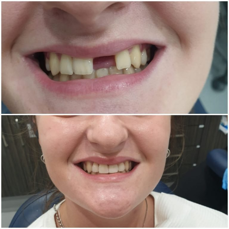 My Gentle Dentist happy patient before-after-dental implant