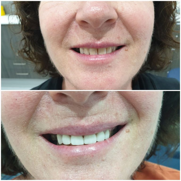 My Gentle Dentist happy patient before after teeth whitening-4