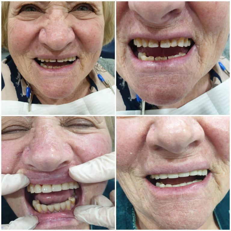 My Gentle Dentist happy patient befor-after-teeth-whitening