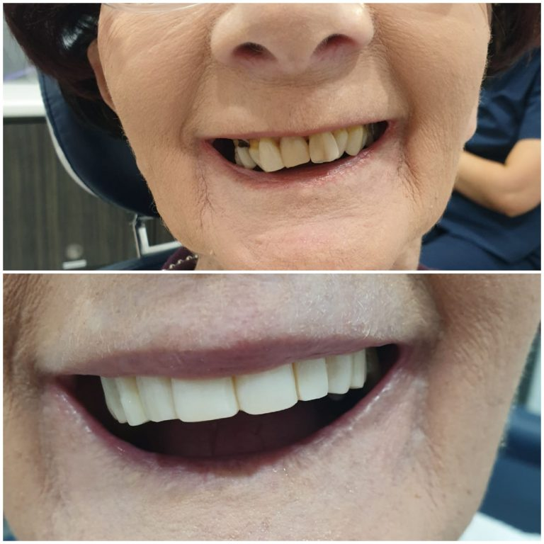 My Gentle Dentist happy patient befor-after-teeth-whitening-6
