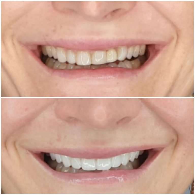 My Gentle Dentist happy patient befor-after-teeth-whitening-7