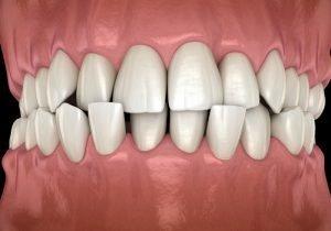 Crossbite Teeth Treatment
