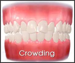 Crowding - My Gentle Dentist