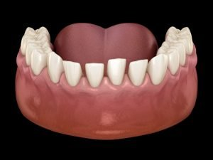 Excessive Spacing Teeth Treatment - My Gentle Dentist @ Arana Hills and @ Brookside