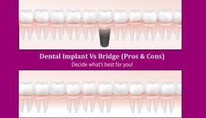Dental Implants Vs Dental Bridges (Pros & Cons): Decide what's best for you!