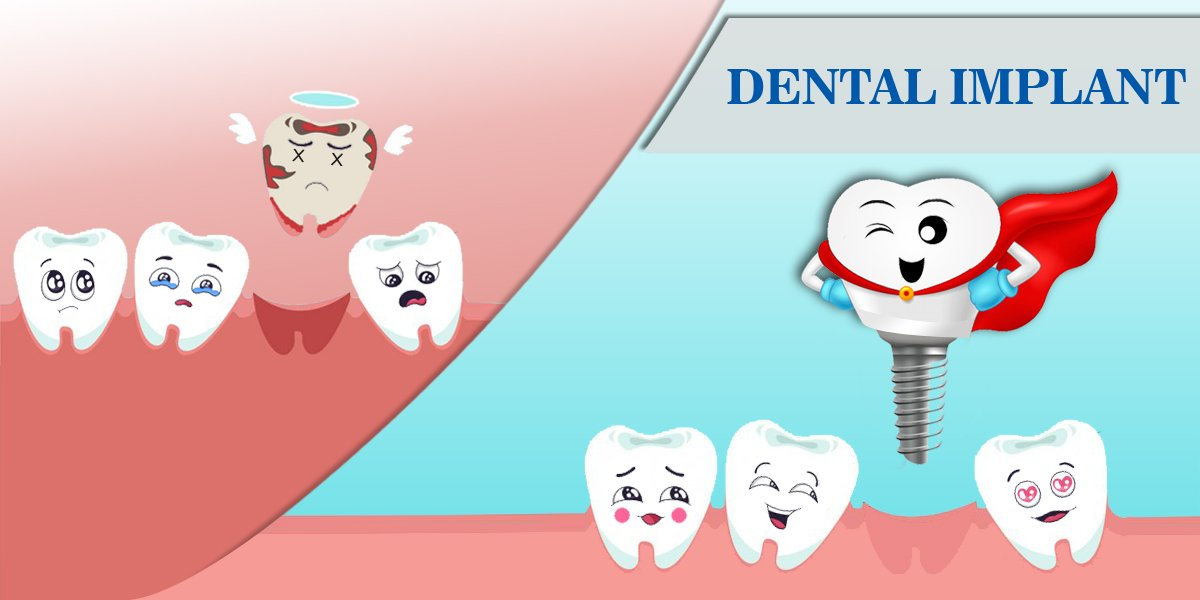 Top 5 Benefits of Dental Implants
