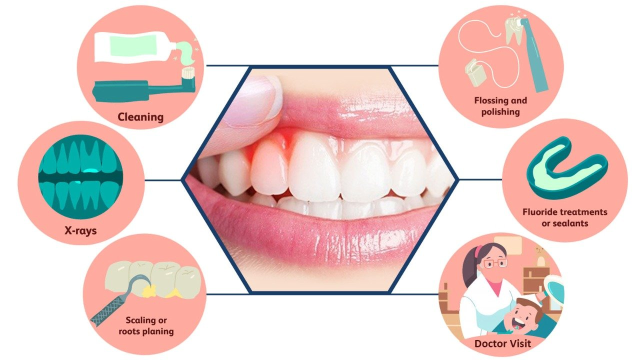 Gingivitis: Gum Disease Symptoms, Treatment, and Prevention