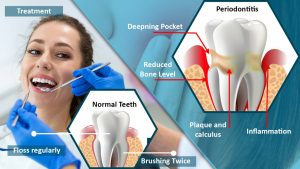 Periodontitis: Gum Disease Symptoms, Treatment, and Prevention