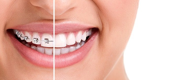 How to Boost your Confidence with Invisalign as an Aspiring Model?