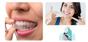 An Introduction To Invisalign In 5 Minutes!