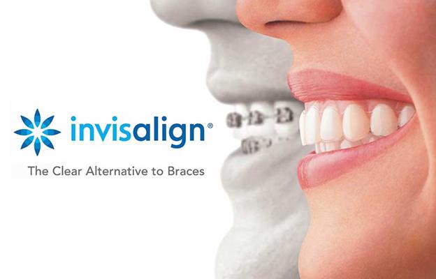 Braces Orthodontic Treatment - Braces orthodontics Treatment