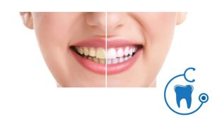 What Are The Advantages of Teeth Whitening?