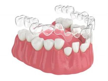Invisalign Cost Australia - Invisalign dentist near me
