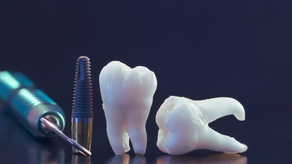 Dental Implants - Dental Implants Cost Australia