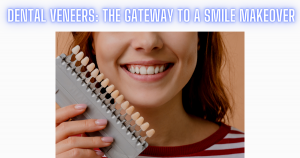 Dental Veneers: The Gateway To A Smile Makeover