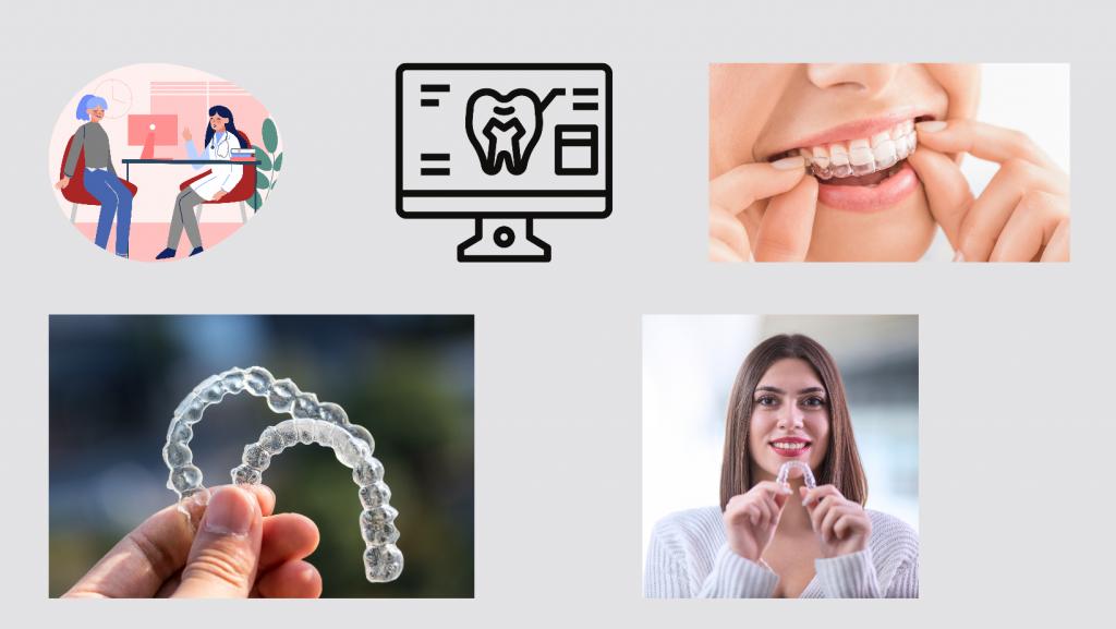 Cost of dental implants - Affordable dental implants in Brisbane