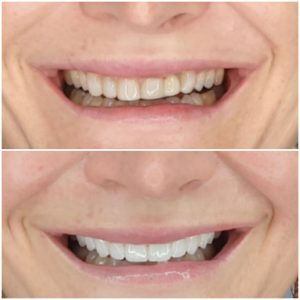 My Gentle Dentist happy patient before and after teeth whitening
