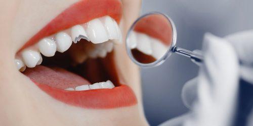 Broken Cracked Tooth - My Gentle Dentist