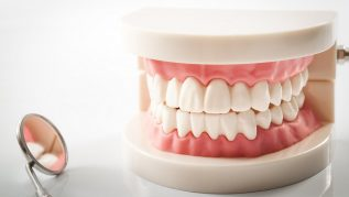 complete-partial-dentures
