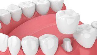 Dental Crown Bridge