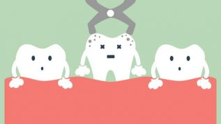 TOOTH EXTRACTION AND REMOVAL COST IN AUSTRALIA