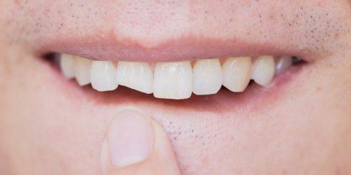 Trauma injury teeth - My Gentle Dentist